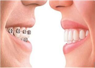 常熟牙齿矫正有没有必要做