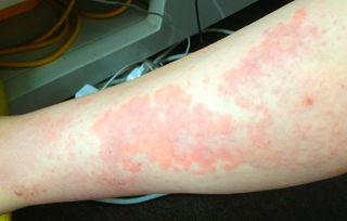 腿上长了很多小红疙瘩,腿上长了很多小红点,腿部长红疙瘩怎么回事