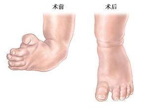 鞋不好对脚有什么影响你知道吗?