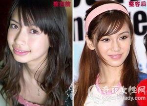 杨颖被爆8年整容史 杨颖整容前后对比照片 2
