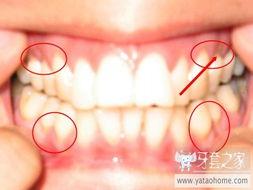 补牙牙套的相关问题