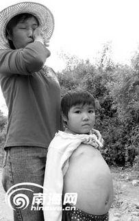 大肚子女孩.刘孙谋摄-9岁女孩肚子大得像孕妇 被 怪病 困扰8年