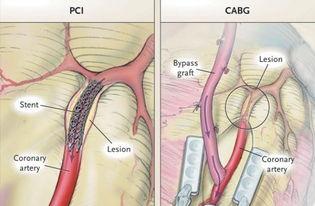 wwcom8o5o午-研究概要   本研究纳入了600例无保护左主干冠脉狭窄患者,来自韩国...