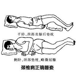 颈椎病正确睡姿图片