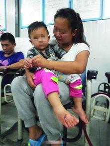 2岁女童和她的奶奶.目前,伤者已经注射疫苗,正在医院接受治疗.  ...