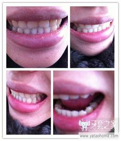 ...看看,我这样有必要做手术吗 中国最大的牙齿矫正论坛及精神家园,...