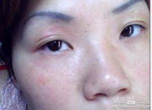 面部皮肤过敏的原因是什么