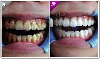 洗牙祛除牙结石需要多少钱