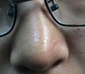鼻子上长了密密麻麻的小颗粒