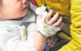 ...受伤小朋友正在输液.  摄 -四川 毒蛇半夜钻被窝 咬伤两岁女童手 图