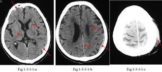 ...园XCTMR.com-硬膜下血肿 颅脑损伤 CT诊断学