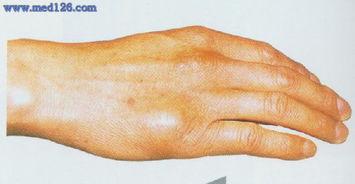 掌骨骨折切开复位术操作步骤,图片图谱图解,手术治疗方法,诊断骨...