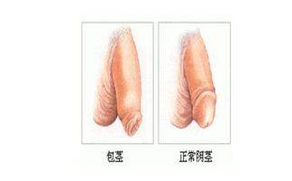 哪些情况下男性需要进行生殖整形
