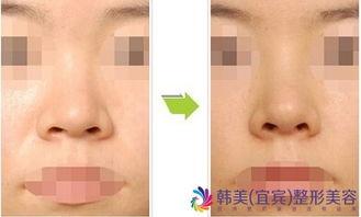 鼻子整形恢复所需要的时间是多久