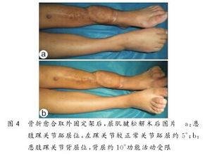 闭合性多发掌骨骨折并发急性手部骨筋膜室综合征的处理