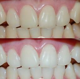 牙结石的危害都有哪些?