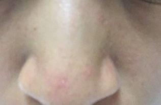 ...子和鼻子两侧 密密麻麻小疙瘩 有的过几天是白色颗粒 ,有的一