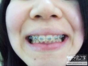 戴上牙套4个月了,也放点照片对比下 2 正在进行中牙套自拍图 中国最...