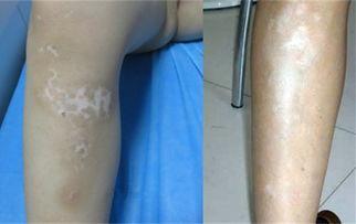 1069图片腿上白癜风早期有什么症状 及时发现助你治疗疾病 国际新闻 ...
