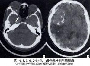 蝶骨嵴内1 3脑膜瘤切除术
