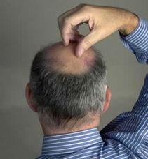 溢脂性脱发能治好吗 全面为你讲述溢脂性脱发