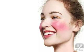 面部皮肤过敏如何选择护肤品