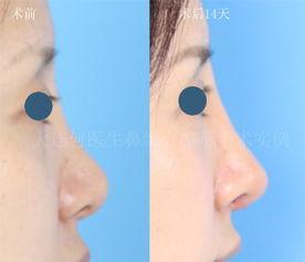 ...00609膨体修复隆鼻综合整形 膨体垫鼻梁,耳软骨,鼻中隔软骨修鼻...