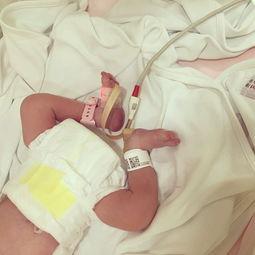 上-艺人郑希怡女儿出生 是择日开刀 重5.5磅