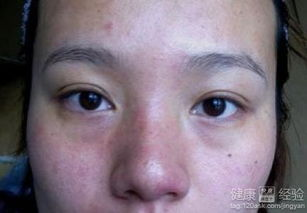 面部皮肤过敏的原因有哪些