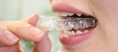 牙齿矫正与 瓷面贴 牙齿整形的区别