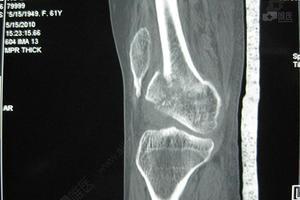 畸骨-短肢畸形 骨折