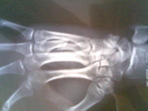 右手第4掌骨骨折,有片子