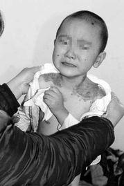 活割女人皮-切肤之爱:六块皮肤的生命传递   儿子的怪病改变了一家人的命运,在...