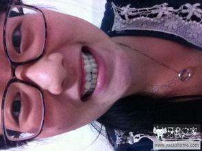 ...必要牙齿矫正T T 中国最大的牙齿矫正论坛及精神家园,互助分享