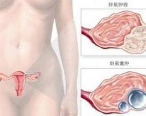 宫颈白斑有哪些常见危害呢?