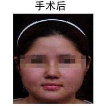 鼻尖整形后需要多久才能恢复呢