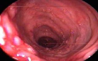 大便出血临床症状 -常见症状 便血