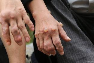 脚刑钉脚趾老虎凳硬-雅龙乡很多村民有疑似痛风病,有些人病症十分严重,双手掌和脚板已...
