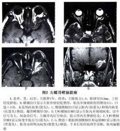 蝶骨嵴脑膜瘤眼部病变