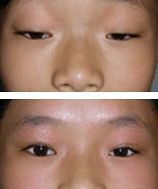 图6.上睑下垂矫正术效果对比图2-眼睑下垂手术