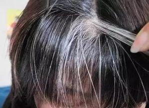 可以治疗黑发的药材食材   何首乌... 每天喝上几杯,慢慢头发就会变黑...