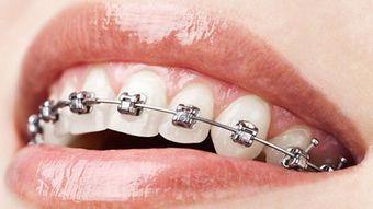 牙齿矫正期间如何正确刷牙