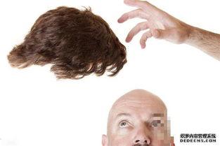 溢脂性脱发的原因 溢脂性脱发能治好吗 推荐分类