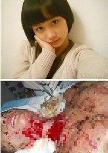 ...被烧伤前后对比图片来自家属微博-合肥少女毁容案中 戾气从何而来