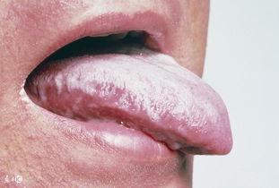 ...症经常被误诊为口腔溃疡,但知道的人太少