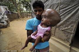 这些让人心碎的图片向我们展示了一个印度乡村女童的悲惨遭遇,仅仅...