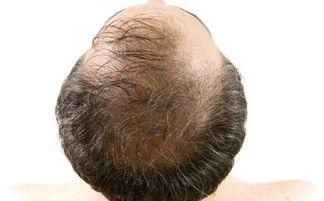 男性溢脂性脱发的特征 中医治疗方有哪些