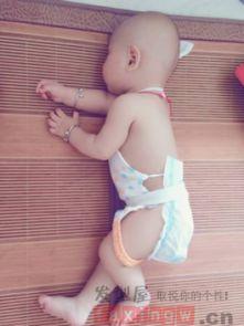 婴儿扁头型图片