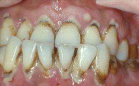 这也是导致他们牙齿缺失最主要的原因,然而很多成年人都没有太多时...