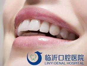 牙套种类与选择